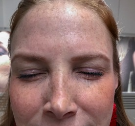 tratamiento-botox